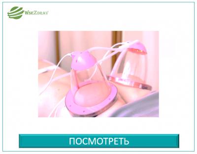 Вакуумный аппаратный баночный массаж